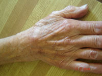 Photo of Hand Wart