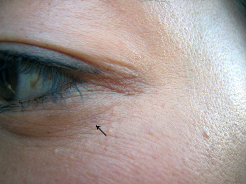 syringoma under eye #9