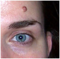 Rachel's Skin Mole on her Forehead Prior to Removal Treatment