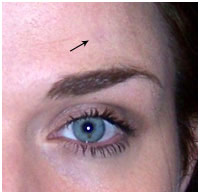 Rachel's Skin Mole on her Forehead Removed with Wart Mole Vanish Cream