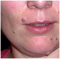 Rachel's Facial Mole on Upper Lip Prior to Removal Treatment