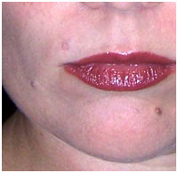 Rachel's Facial Mole on Upper Lip After Removal Treatment with Wart Mole Vanish Cream