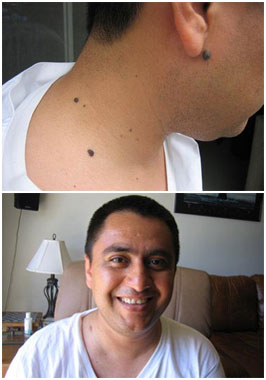 Wart Mole Vanish Before After - Patricio's Mole Removal