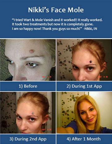 Nikki Mole Removal 1