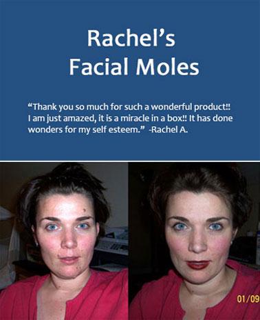 Rachel Mole Removal 1