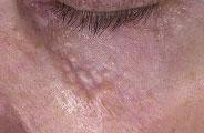 Syringoma Treatment