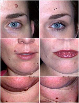 Rachel used Wart Mole Vanish to remove moles on her face.