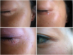 Keiko removed syringoma clusters from underneath her eyes with Wart Mole Vanish.