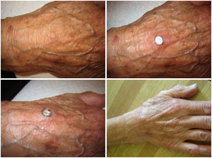 The owner of Pristine Herbal Touch used Wart Mole Vanish on his own mom!