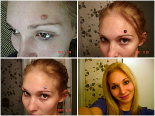 Nikki removed a big ugly mole on her forehead with Wart Mole Vanish.