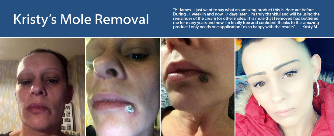 Mole Removal Before & After - Wart & Mole Vanish | Wart