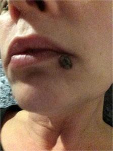 Moles Wart Mole Vanish Wart Mole Skin Tag Syringoma Remover